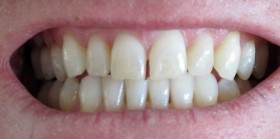 Laukiu dantų protezo
